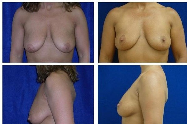 Breast_Lift_Case_811