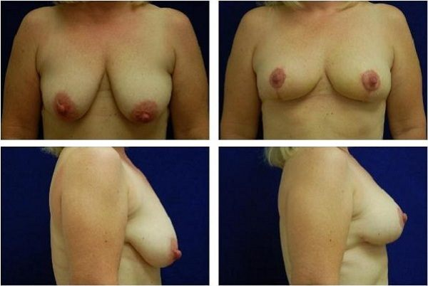 Breast_Lift_Case_812