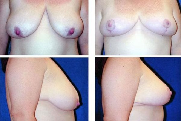 Breast_Lift_Case_818