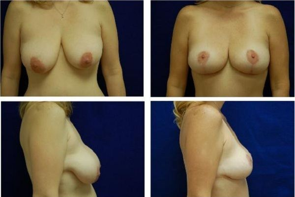 Breast_Lift_Case_841