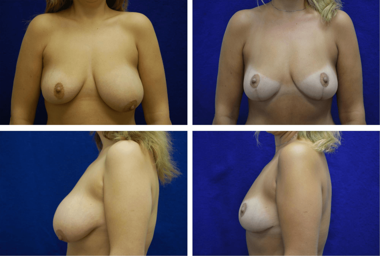 Breast_Lift_Case_91841