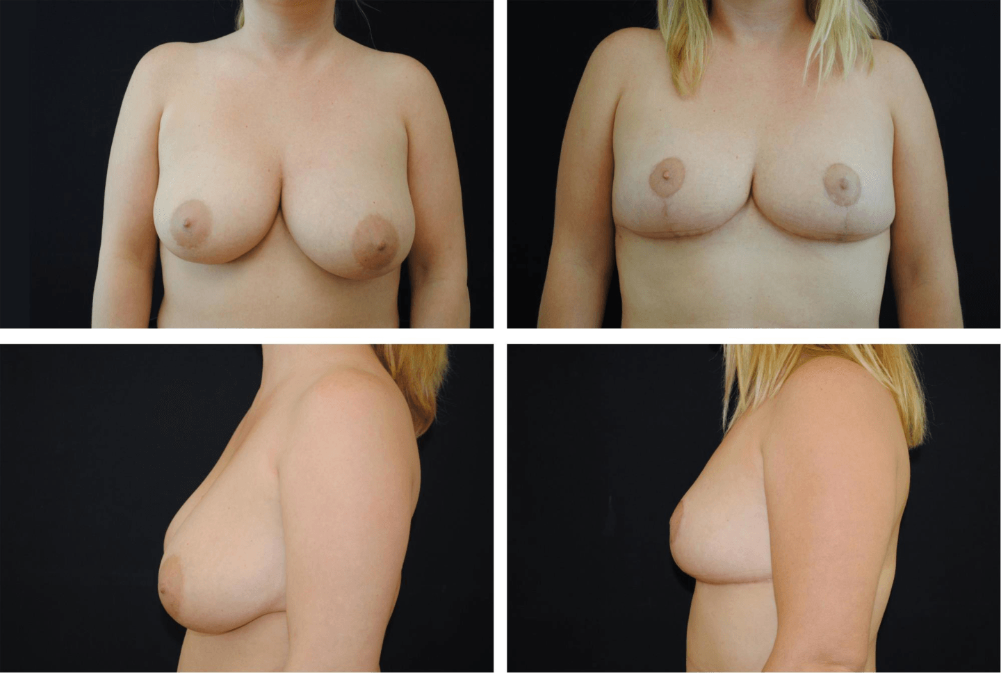 Breast_Reduction_Case_01121