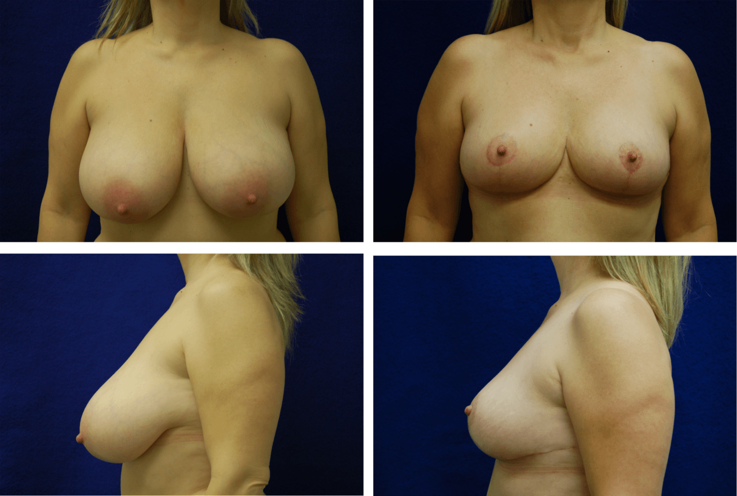 Breast_Reduction_Case_02211