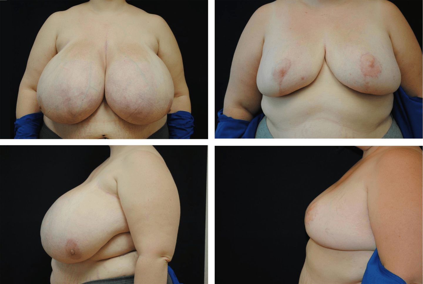 Breast_Reduction_Case_02311