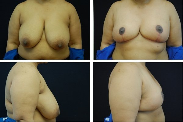 Breast_Reduction_Case_07511