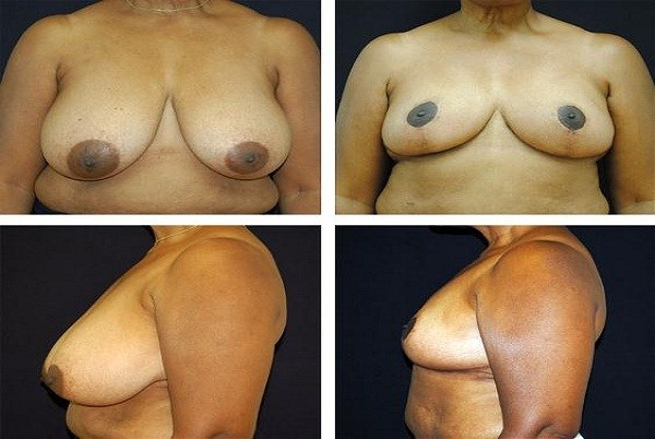 Breast_Reduction_Case_2116