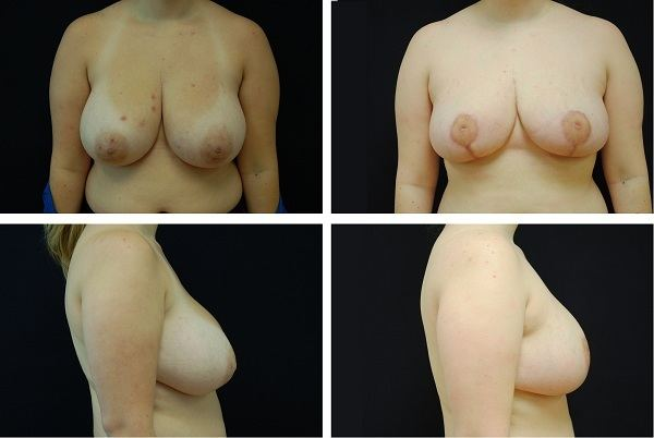 Breast_Reduction_Case_2949