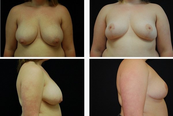 Breast_Reduction_Case_3561