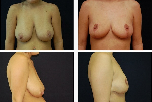 Breast_Reduction_Case_5409