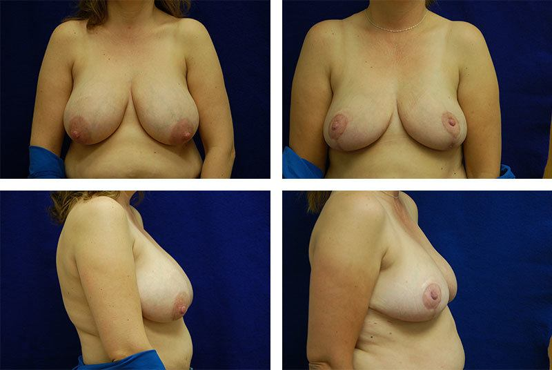Breast_Reduction_Case_5747