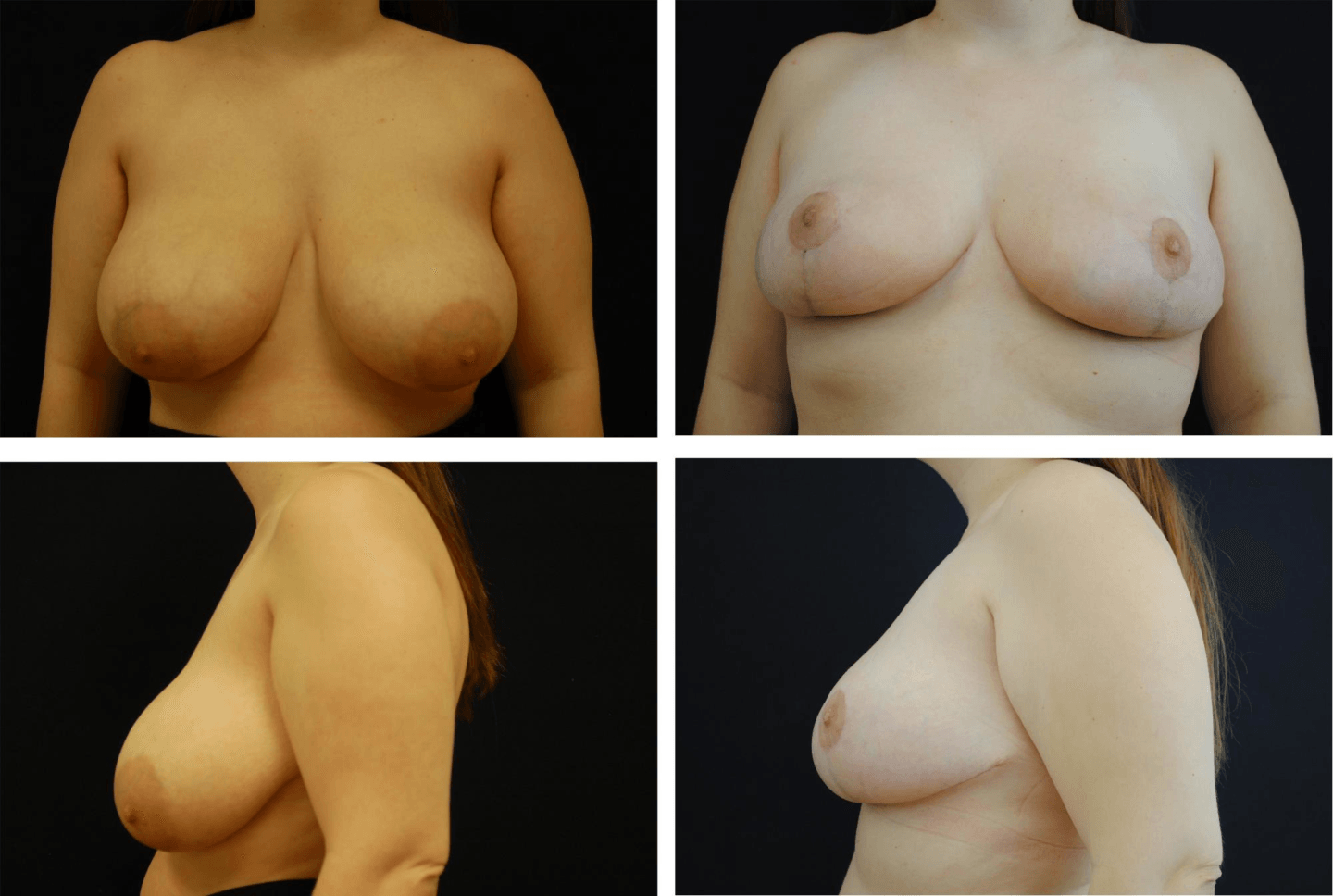 Breast_Reduction_Case_67221