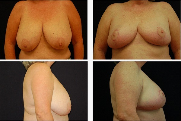 Breast_Reduction_Case_7609