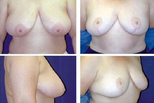 Breast_Reduction_Case_801