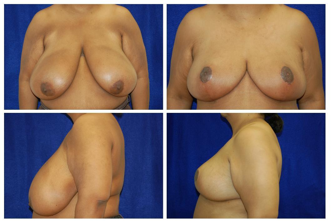 Breast_Reduction_Case_802