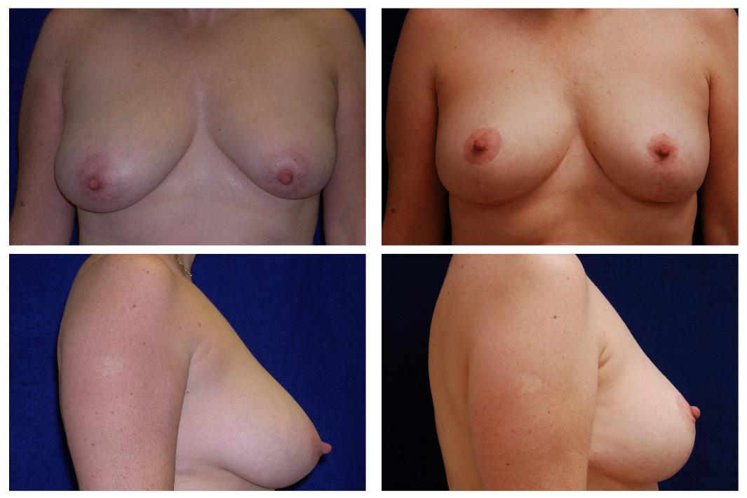 Breast_Reduction_Case_804