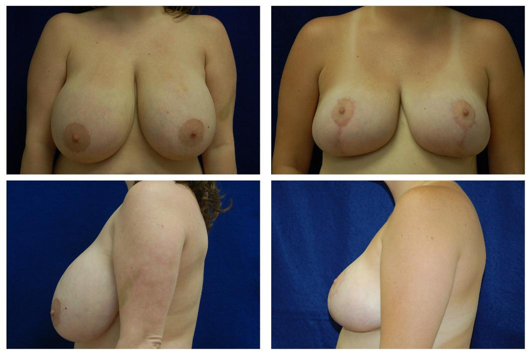 Breast_Reduction_Case_805