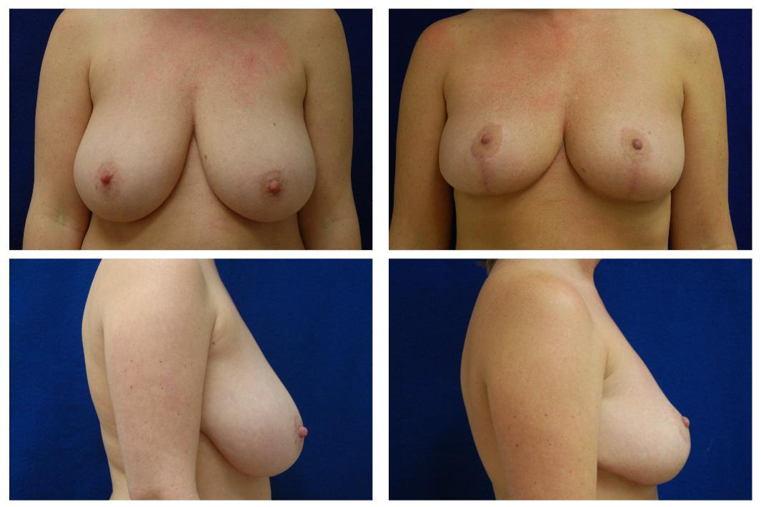 Breast_Reduction_Case_806