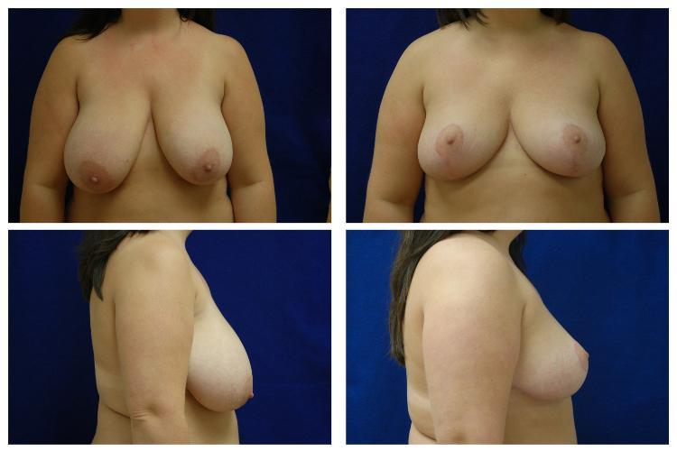 Breast_Reduction_Case_807