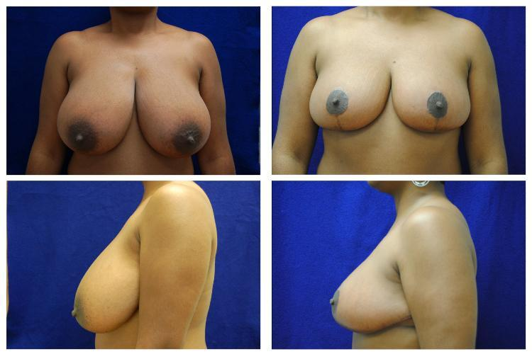 Breast_Reduction_Case_808