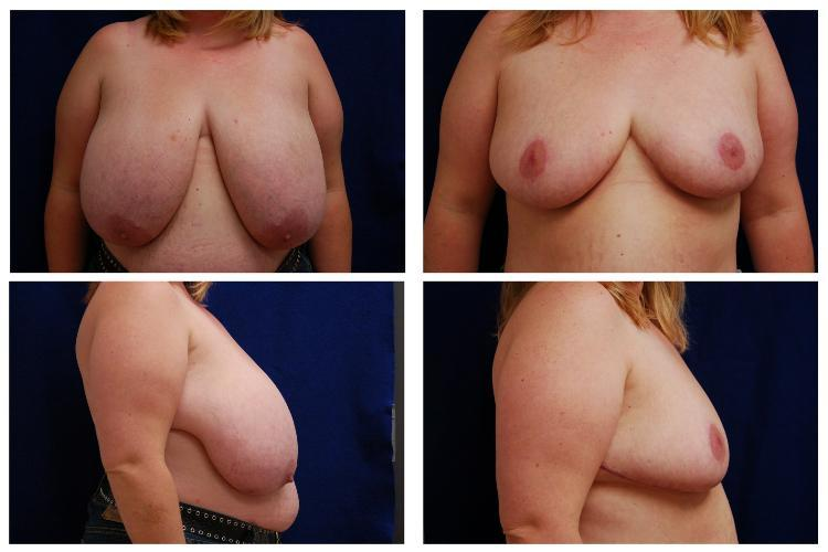 Breast_Reduction_Case_809