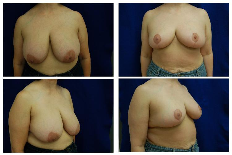 Breast_Reduction_Case_810