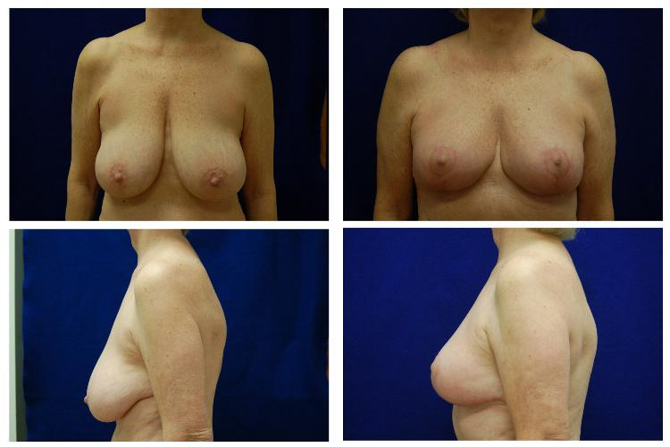 Breast_Reduction_Case_811