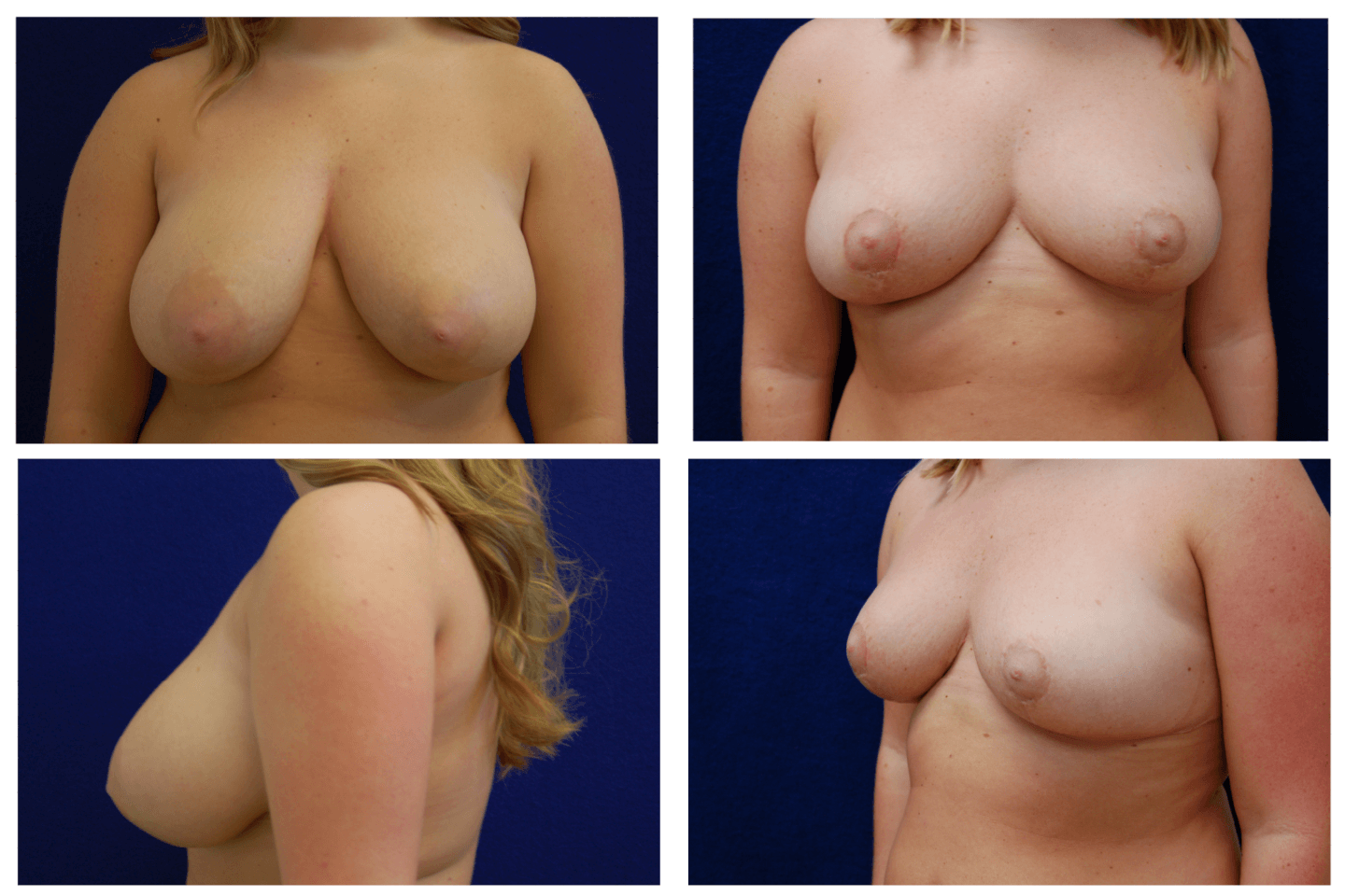 Breast_Reduction_Case_815