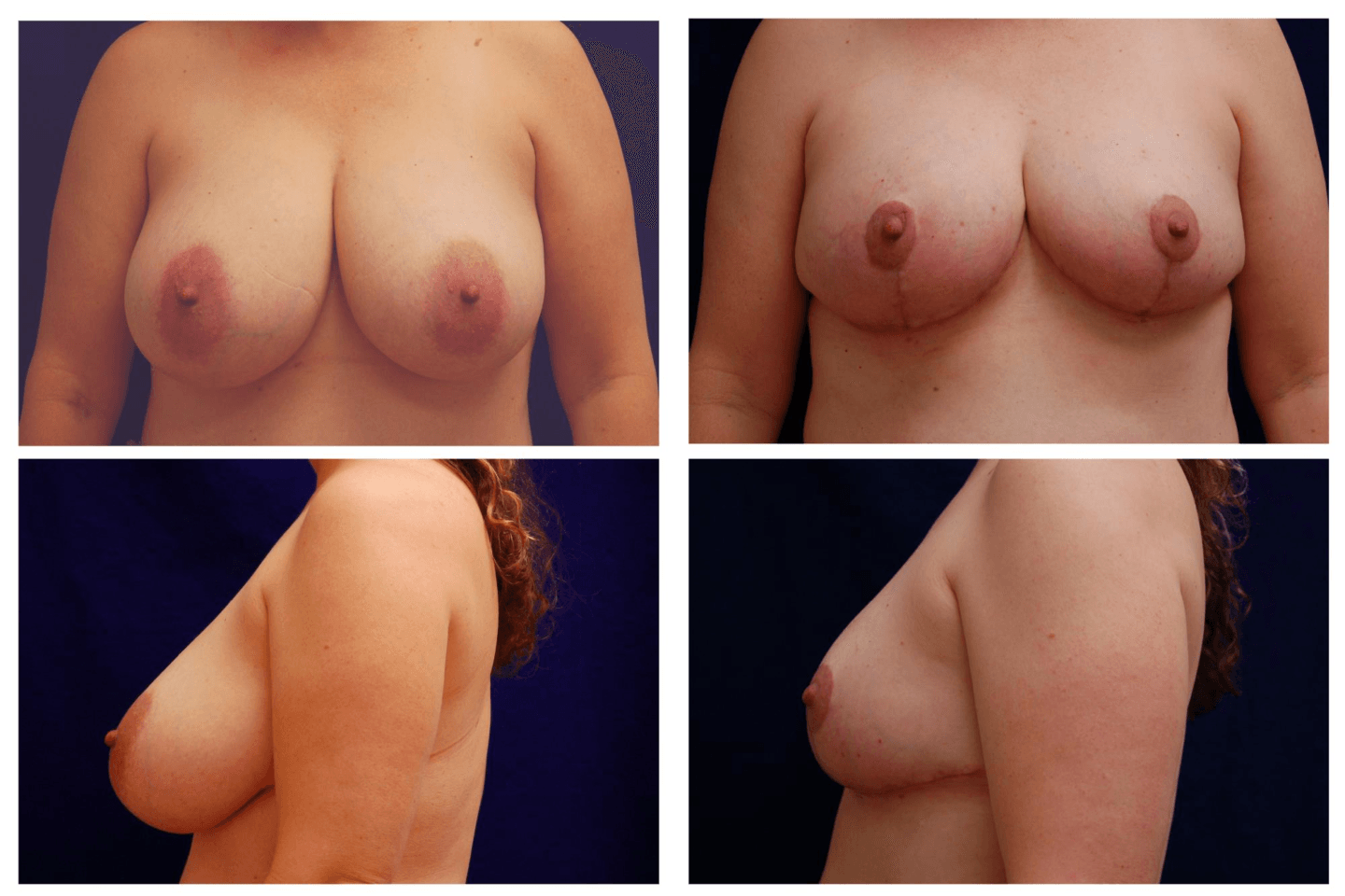 Breast_Reduction_Case_816