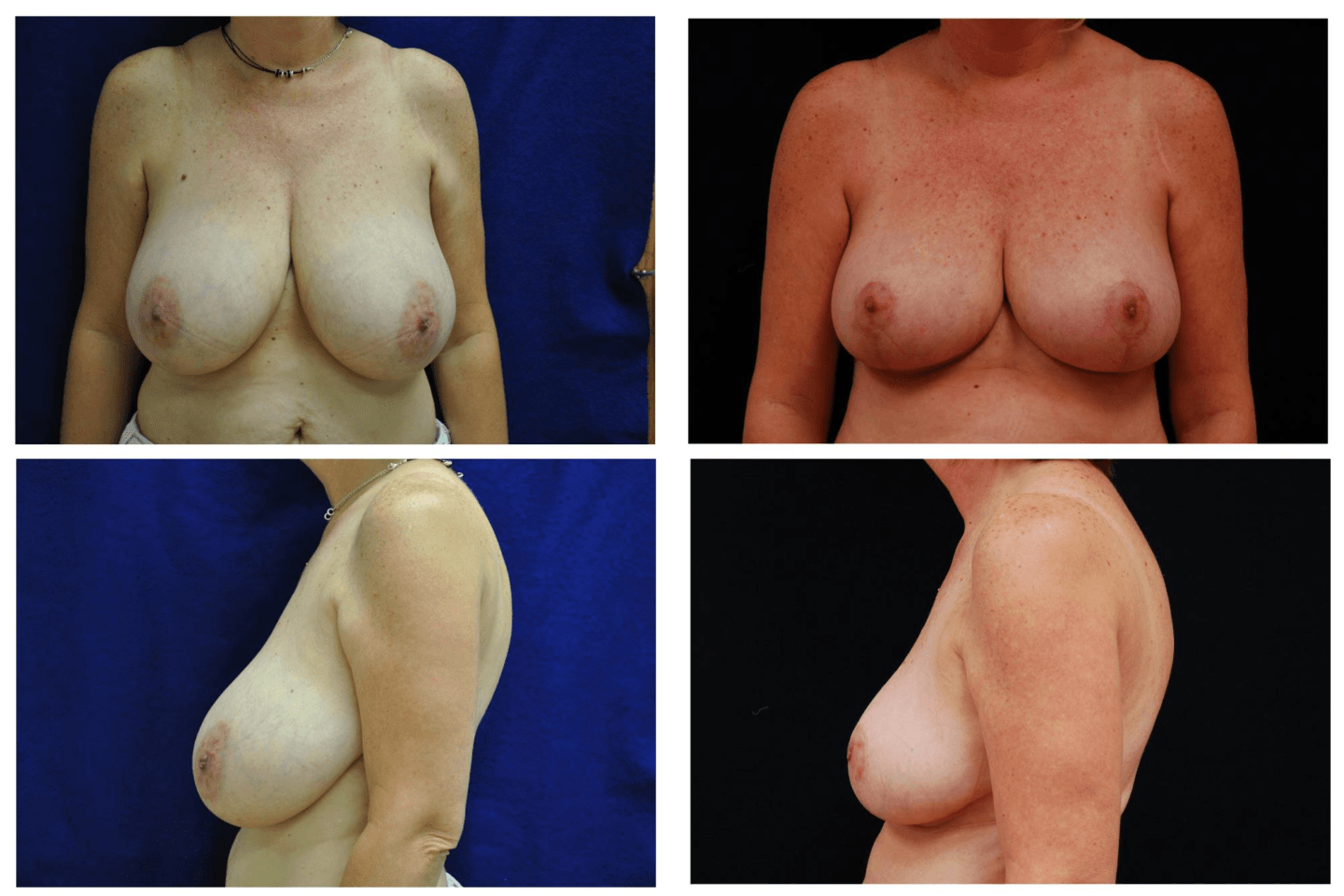 Breast_Reduction_Case_817