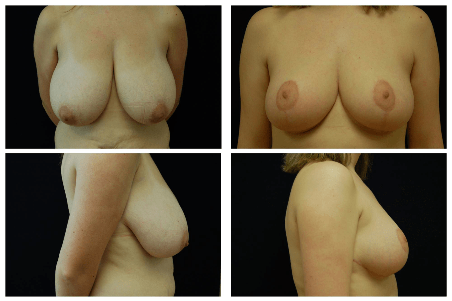 Breast_Reduction_Case_820