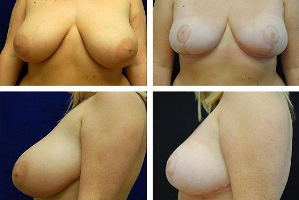 Breast_Reduction_Case_8437