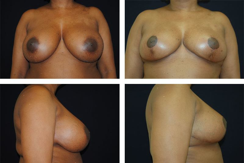 Breast_Reduction_Case_8908