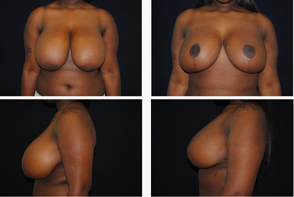 Breast_Reduction_Case_9029