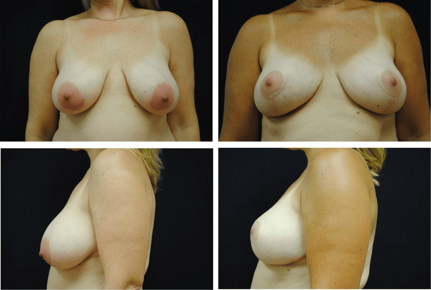 Breast_Reduction_Case_98102