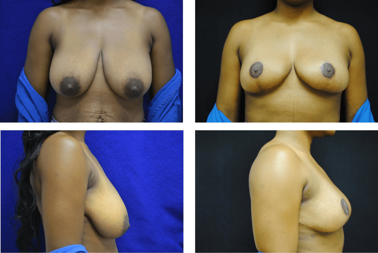 Breast_Reduction_Case_98103