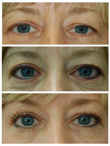 Case 604 - Permanent Eyeliner (Micropigmentation)