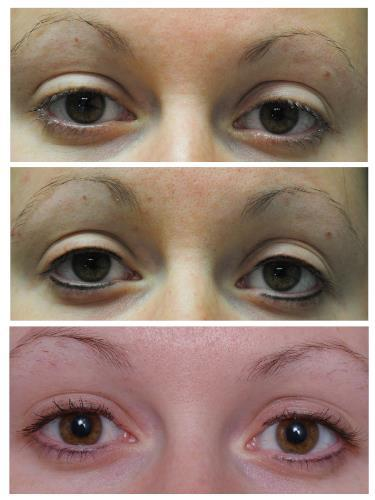 Case 606 - Permanent Eyeliner (Micropigmentation)