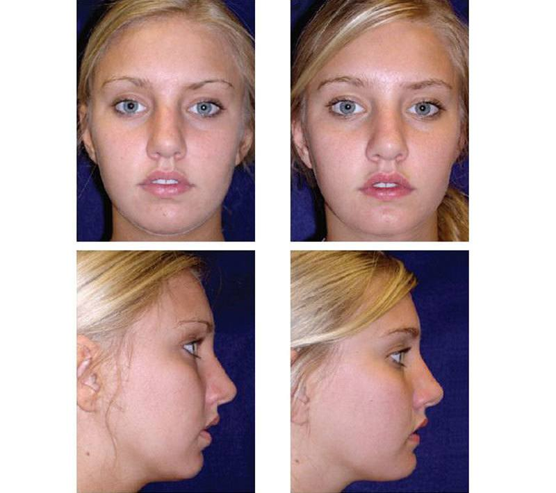 Case_501_-_Chin_Augmentation