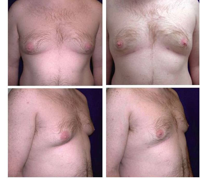 Case_501_-_Gynecomastia_(Breast_Reduction)