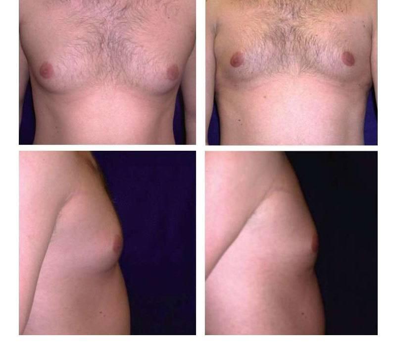 Case_502_-_Gynecomastia_(Breast_Reduction)