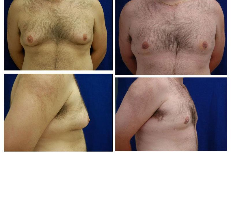 Case_504_-_Gynecomastia_(Breast_Reduction)