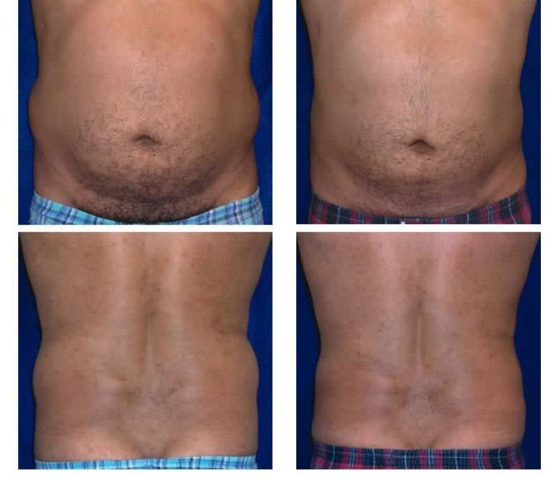 Case_506_-_Liposuction