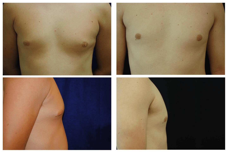 Case_610_-_Gynecomastia_(Male_Breast_Reduction)
