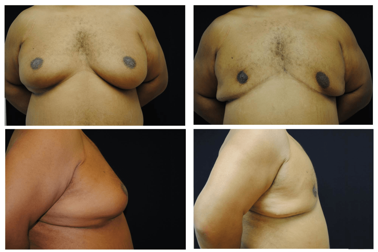 Case_721_-_Gynecomastia_(Male_Breast_Reduction)