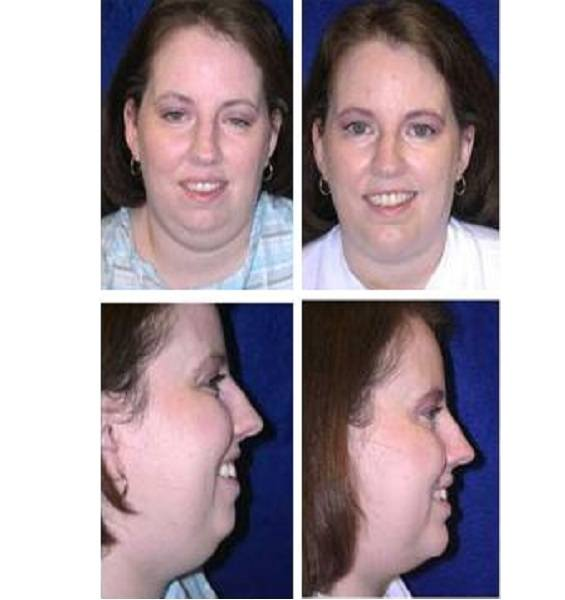 Chin_Augmentation_Case_504