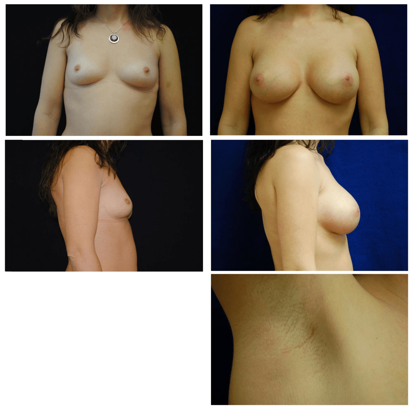 Endoscopic_Breast_Augmentation_Case_100