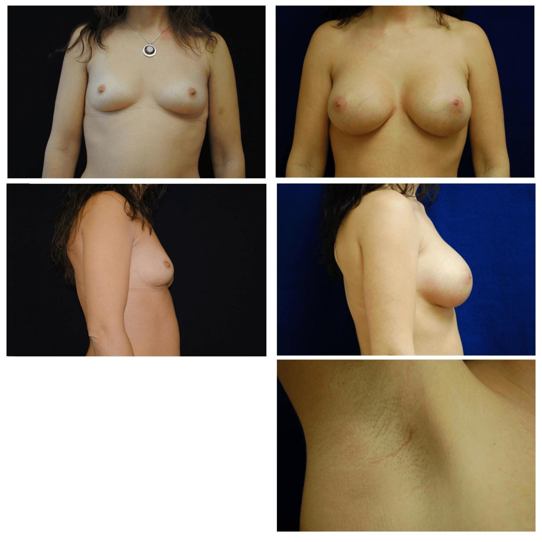 Endoscopic_Breast_Augmentation_Case_100