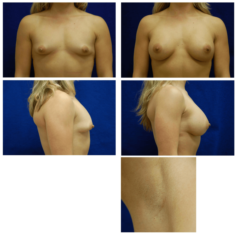 Endoscopic_Breast_Augmentation_Case_101