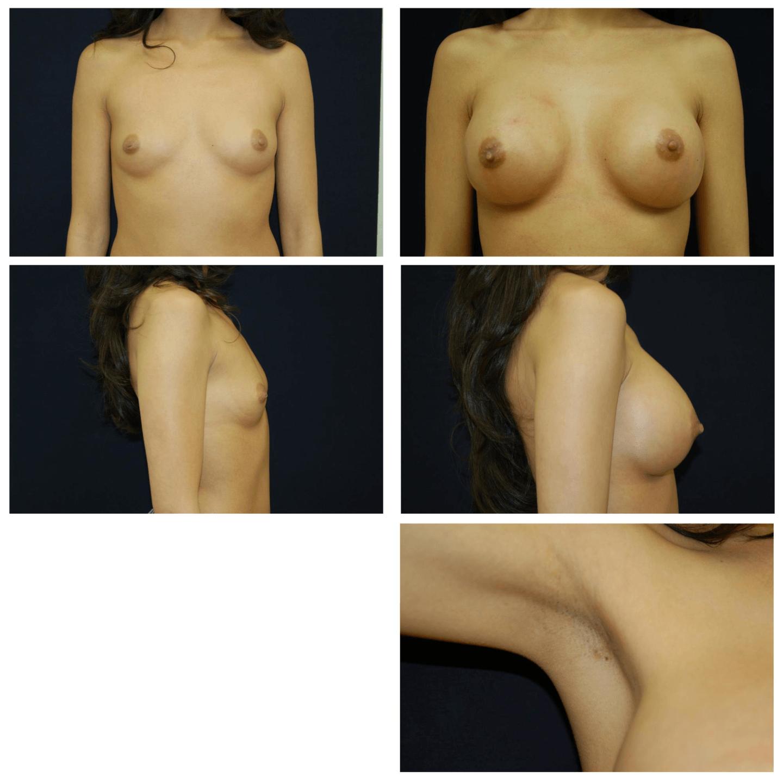 Endoscopic_Breast_Augmentation_Case_102