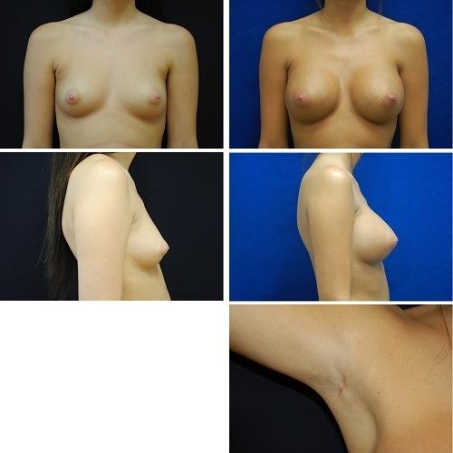 Endoscopic_Breast_Augmentation_Case_5558